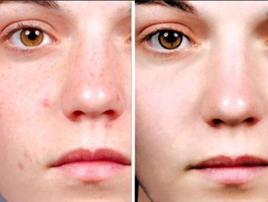 Những lưu ý không thể quên khi chăm sóc da bị dị ứng mỹ phẩm